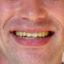Dan Strauss's Luscious Lips